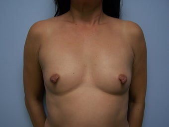 Breast Augmentation via fat transfer to breasts before 1401945