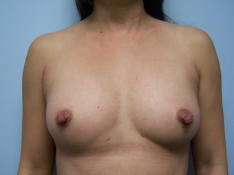 Breast Augmentation via fat transfer to breasts after 1401945