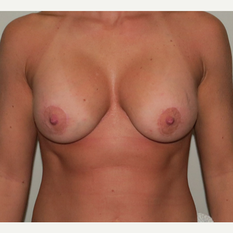 Breast Lift with Implants for this 34 Year Old Woman after 3025294