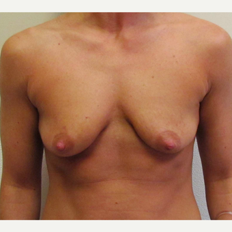 Breast Lift with Implants for this 34 Year Old Woman before 3025294