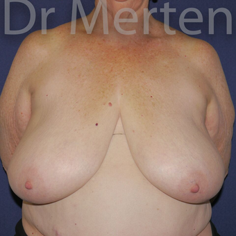 Breast Reduction before 3648528
