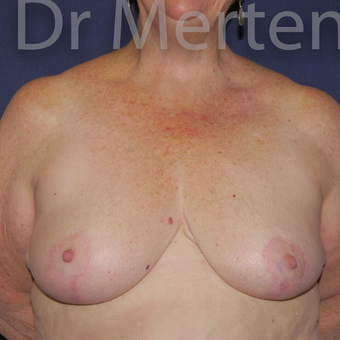 Breast Reduction after 3648528