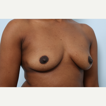 Breast Augmentation before 3460057