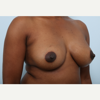 Breast Augmentation after 3460057