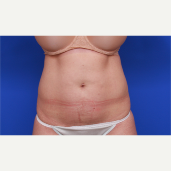 36- year old woman treated with SculpSure before 3033184