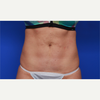 36- year old woman treated with SculpSure after 3033184