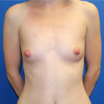25-34 year old woman treated with Breast Augmentation before 1895425