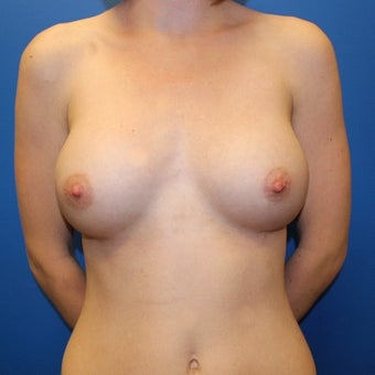 25-34 year old woman treated with Breast Augmentation after 1895425
