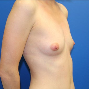 25-34 year old woman treated with Breast Augmentation 1895425