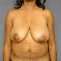35-44 year old woman treated with Mommy Makeover before 3576559