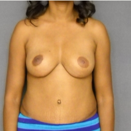 35-44 year old woman treated with Mommy Makeover after 3576559