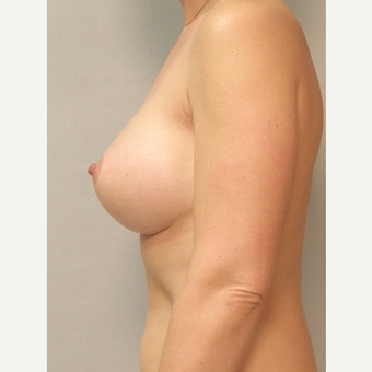 Breast Implants after 3241568