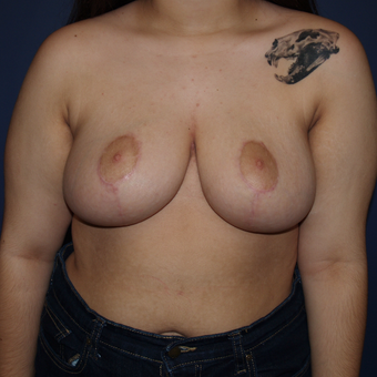 17 or under year old woman treated with Breast Reduction after 3383782