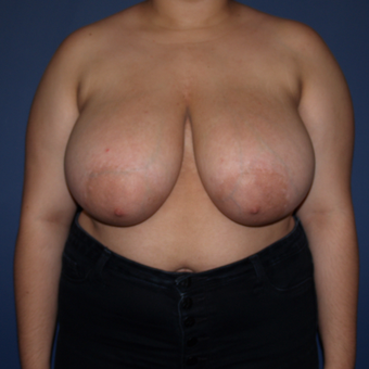 17 or under year old woman treated with Breast Reduction before 3383782