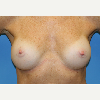 53 year old woman treated with Breast Augmentation after 3486683