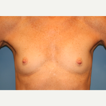 53 year old woman treated with Breast Augmentation before 3486683