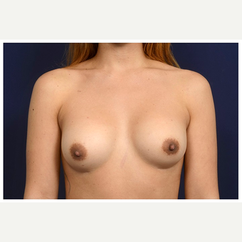 25-34 year old woman treated with Sientra Breast Implants before 3383353