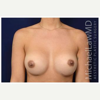 25-34 year old woman treated with Sientra Breast Implants after 3383353