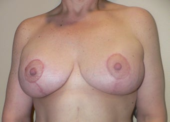 59 year old woman has Breast Lift with Implants after 984158