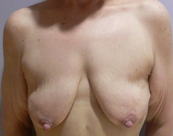 59 year old woman has Breast Lift with Implants before 984158