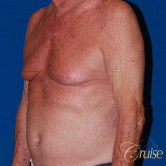64 year old man treated with male breast reduction surgery before 3196814