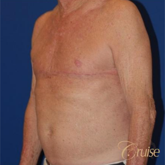 64 year old man treated with male breast reduction surgery after 3196814