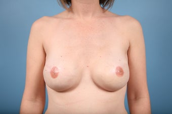 Breast Reconstruction after Bilateral Mastectomy after 553674