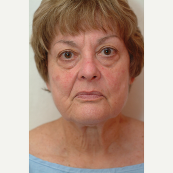 65-74 year old woman treated with Neck Lift before 3764415