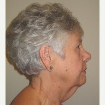 55-64 year old woman treated with Non-Surgical Neck Lift before 2277276