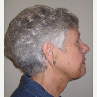 55-64 year old woman treated with Non-Surgical Neck Lift after 2277276