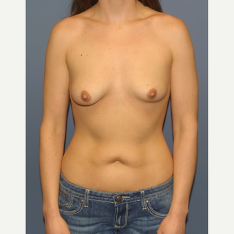 18-24 year old woman treated with Breast Lift with Implants before 3454724