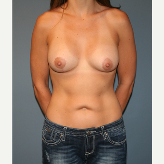 18-24 year old woman treated with Breast Lift with Implants after 3454724