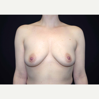 35-44 year old woman treated with Breast Implants before 3441494