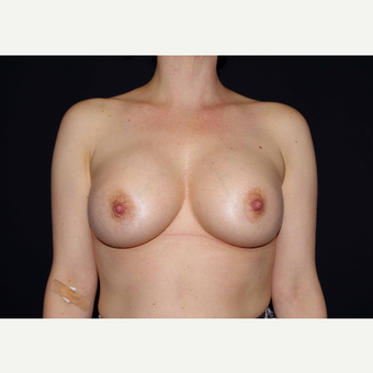 35-44 year old woman treated with Breast Implants after 3441494