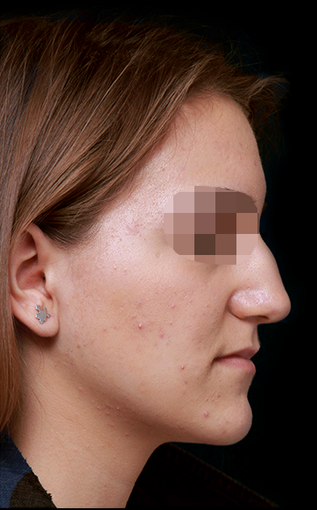25-34 year old woman treated with Rhinoplasty before 3199904