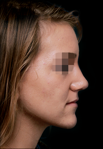 25-34 year old woman treated with Rhinoplasty after 3199904