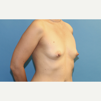 35-44 year old woman treated with Breast Augmentation before 3288326