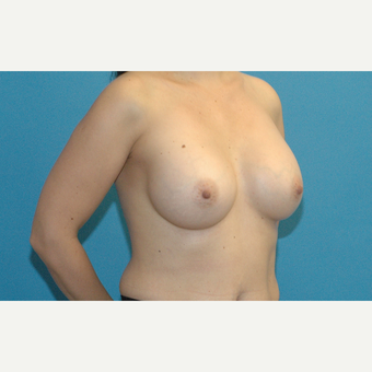 35-44 year old woman treated with Breast Augmentation after 3288326