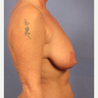 45-54 year old woman treated with Breast Lift before 3095886