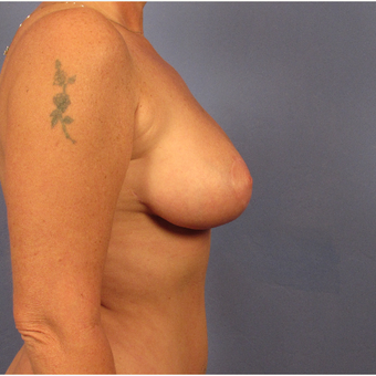 45-54 year old woman treated with Breast Lift after 3095886