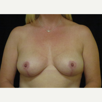 35-44 year old woman treated with Breast Reduction after 3418936