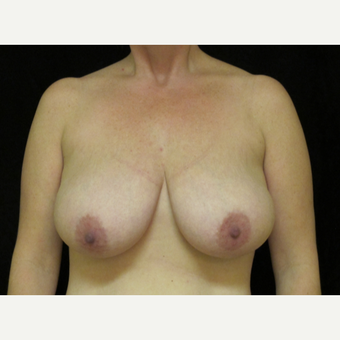 35-44 year old woman treated with Breast Reduction before 3418936