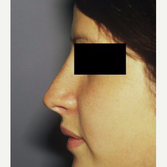 18-24 year old woman treated with Rhinoplasty after 3711540