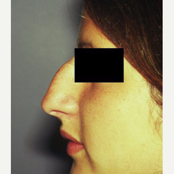 18-24 year old woman treated with Rhinoplasty before 3711540