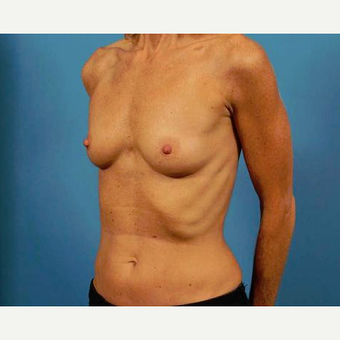 45-54 year old woman treated with Breast Implants before 3786958
