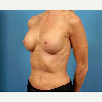 45-54 year old woman treated with Breast Implants after 3786958