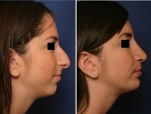 Rhinoplasty and chin implant before 143599