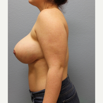 18-24 year old woman treated with Breast Reduction after 3424077