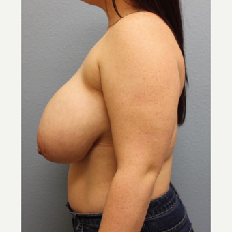 18-24 year old woman treated with Breast Reduction before 3424077