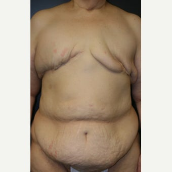 62 y/o - Delayed Bilateral DIEP Breast Flap Reconstruction